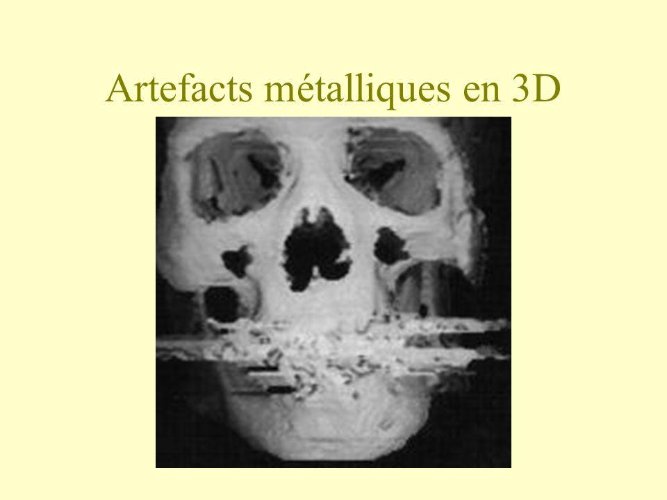 Artefacts métalliques en 3D