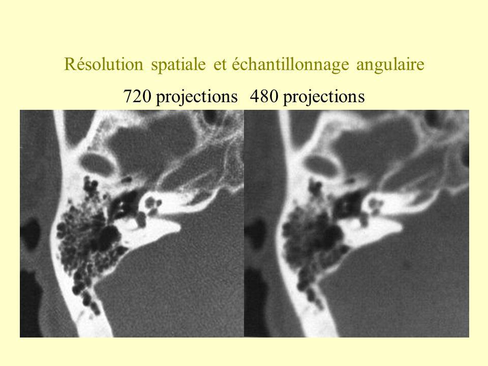 Résolution spatiale et échantillonnage angulaire 720 projections 480 projections
