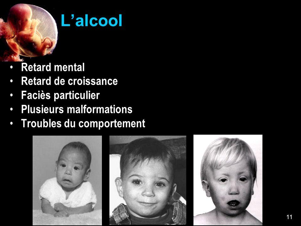 Collège Lionel-Groulx 11 Lalcool Retard mental Retard de croissance Faciès particulier Plusieurs malformations Troubles du comportement
