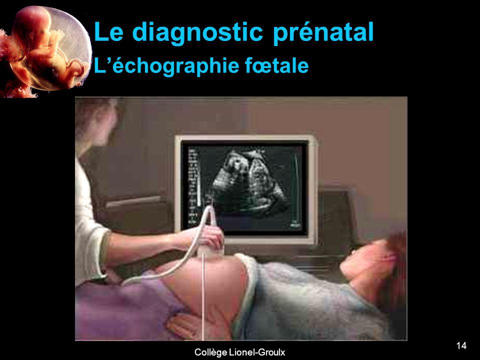 Collège Lionel-Groulx 14 Le diagnostic prénatal Léchographie fœtale