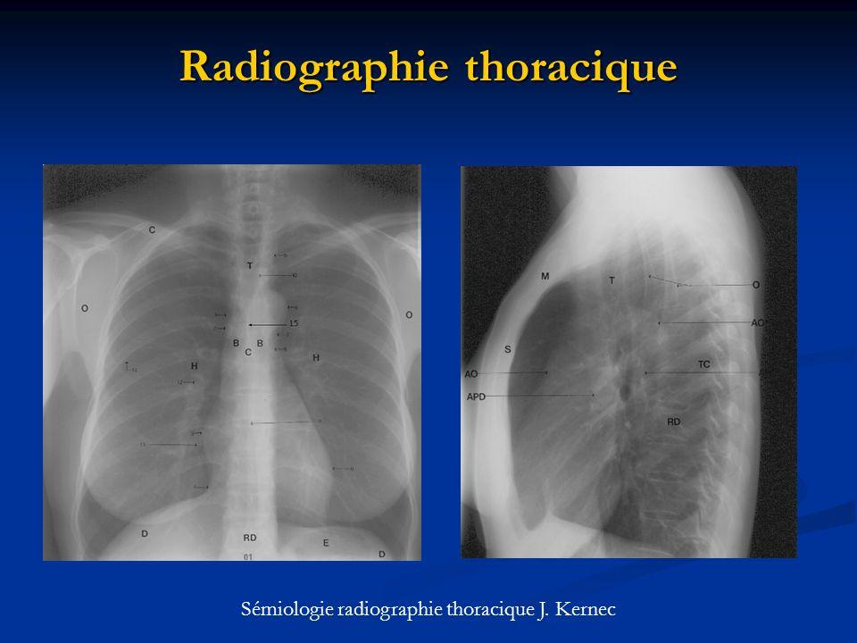 Radiographie thoracique Sémiologie radiographie thoracique J. Kernec