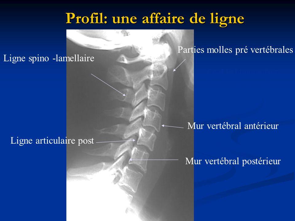 Profil: une affaire de ligne Parties molles pré vertébrales C4-T1<14mm enfant C4-T1<21mm adulte Ligne spino -lamellaire Ligne articulaire post Mur ver
