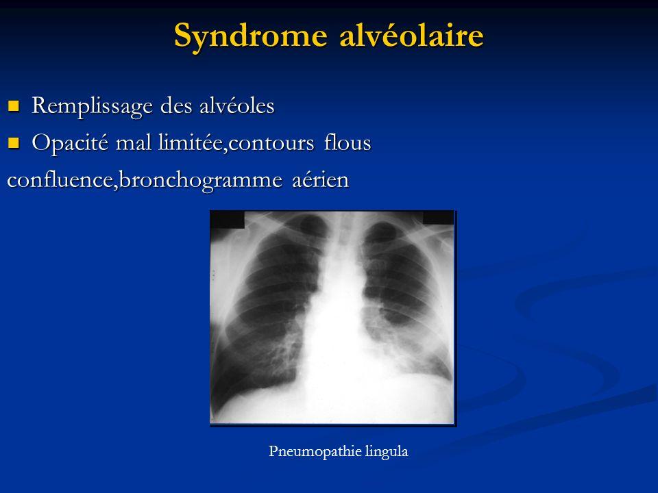 Syndrome alvéolaire Remplissage des alvéoles Remplissage des alvéoles Opacité mal limitée,contours flous Opacité mal limitée,contours flous confluence