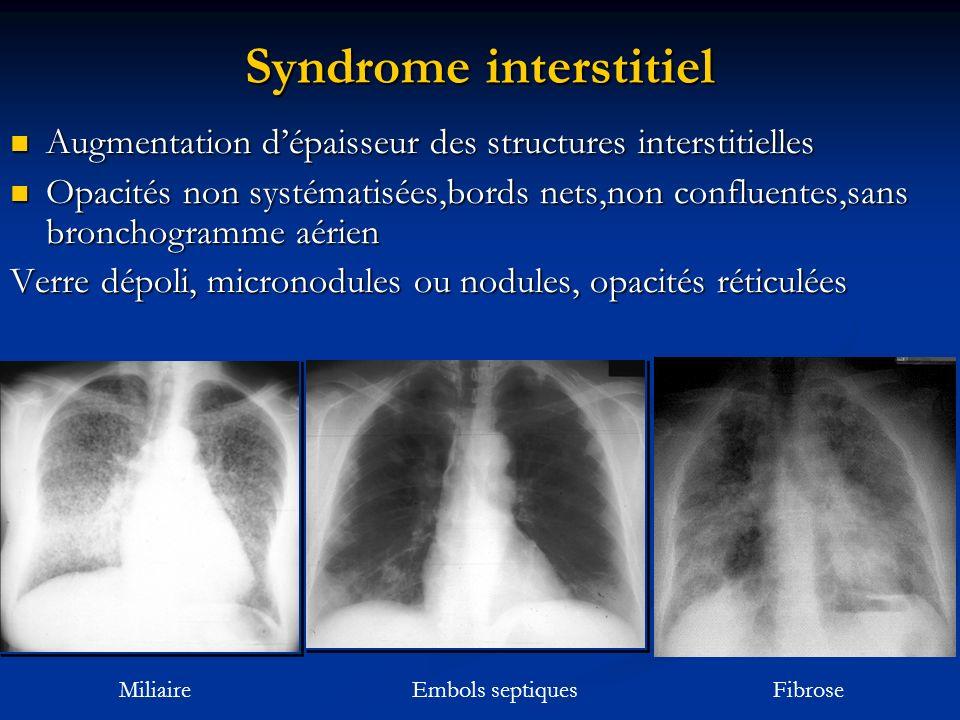 Syndrome interstitiel Augmentation dépaisseur des structures interstitielles Augmentation dépaisseur des structures interstitielles Opacités non systé