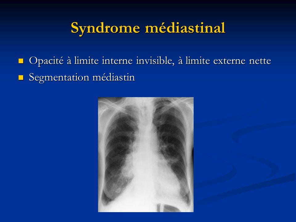 Syndrome médiastinal Opacité à limite interne invisible, à limite externe nette Opacité à limite interne invisible, à limite externe nette Segmentatio