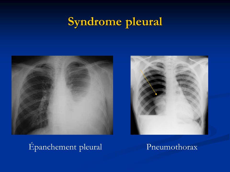 Syndrome pleural Épanchement pleuralPneumothorax