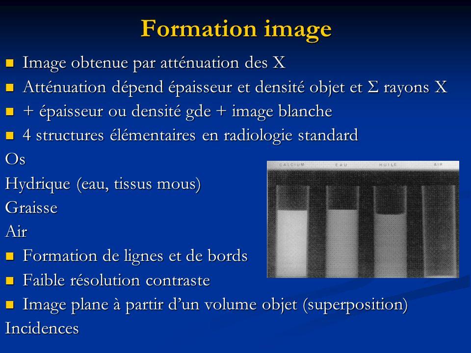 Formation image Image obtenue par atténuation des X Image obtenue par atténuation des X Atténuation dépend épaisseur et densité objet et Σ rayons X At