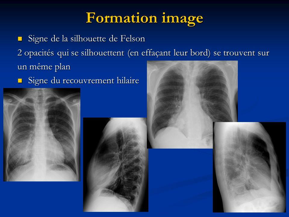 Formation image Signe de la silhouette de Felson Signe de la silhouette de Felson 2 opacités qui se silhouettent (en effaçant leur bord) se trouvent s