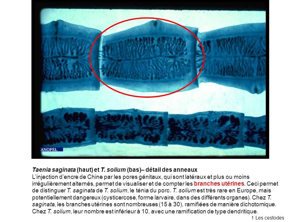 Taenia saginata (haut) et T. solium (bas)– détail des anneaux Linjection dencre de Chine par les pores génitaux, qui sont latéraux et plus ou moins ir