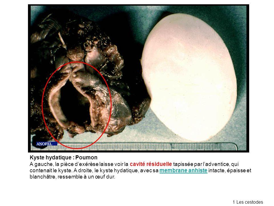 Kyste hydatique : Poumon A gauche, la pièce dexérèse laisse voir la cavité résiduelle tapissée par ladventice, qui contenait le kyste.