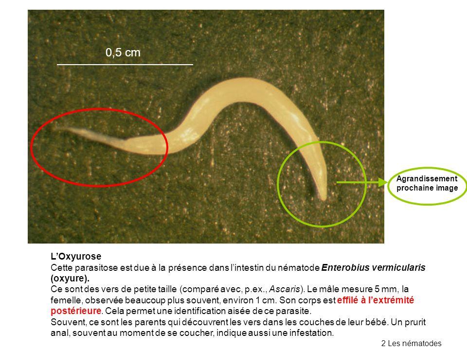 LOxyurose Cette parasitose est due à la présence dans lintestin du nématode Enterobius vermicularis (oxyure). Ce sont des vers de petite taille (compa
