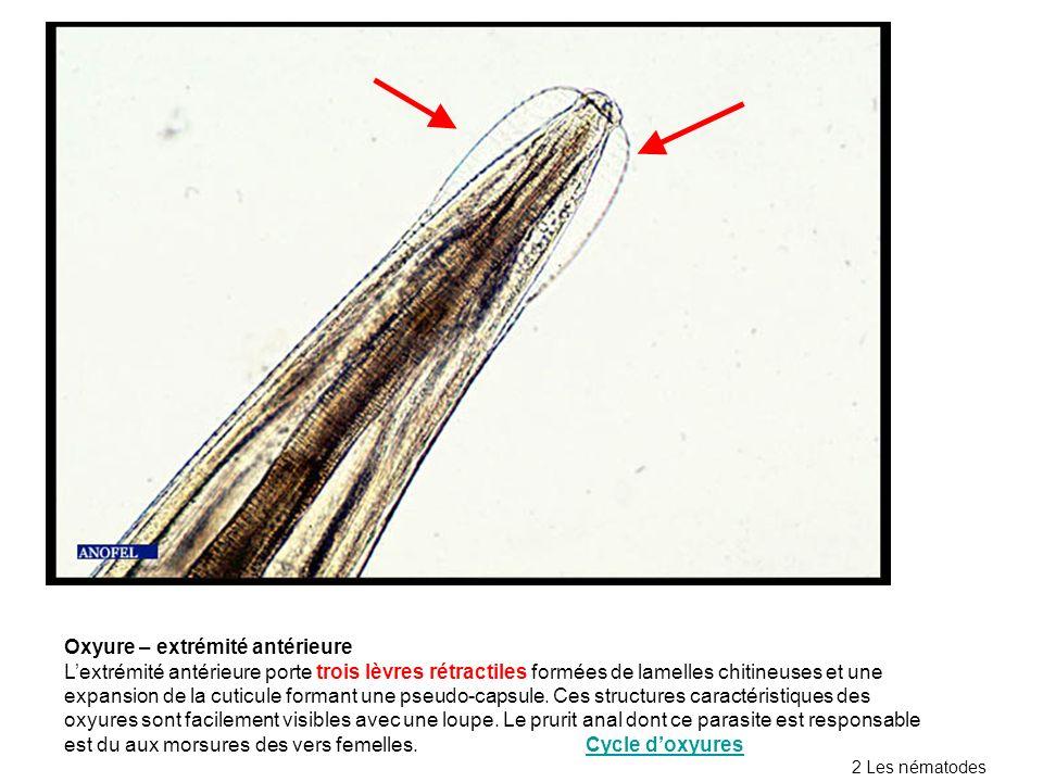 Oxyure – extrémité antérieure Lextrémité antérieure porte trois lèvres rétractiles formées de lamelles chitineuses et une expansion de la cuticule formant une pseudo-capsule.