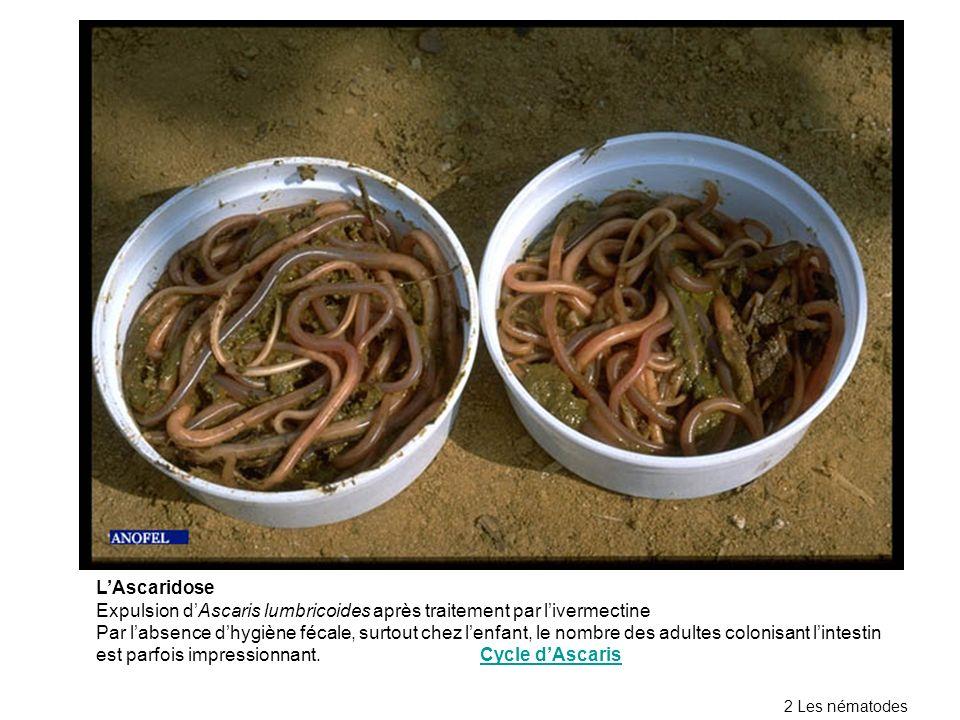 LAscaridose Expulsion dAscaris lumbricoides après traitement par livermectine Par labsence dhygiène fécale, surtout chez lenfant, le nombre des adultes colonisant lintestin est parfois impressionnant.Cycle dAscarisCycle dAscaris 2 Les nématodes