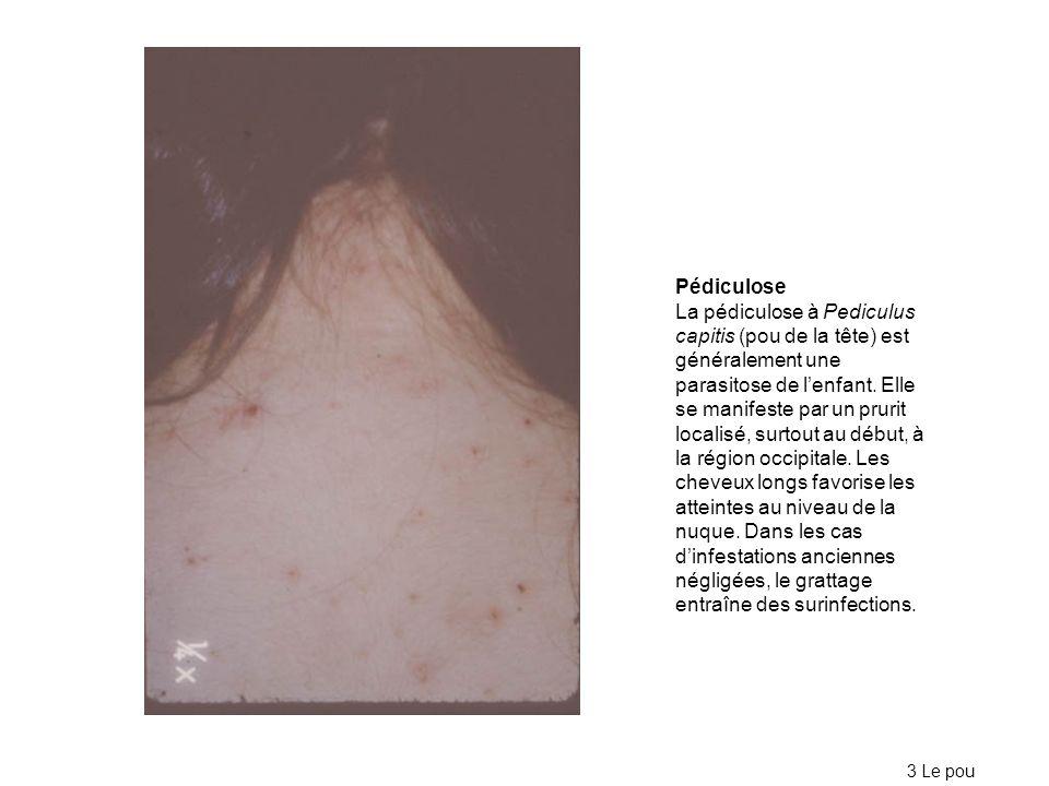 Pédiculose La pédiculose à Pediculus capitis (pou de la tête) est généralement une parasitose de lenfant. Elle se manifeste par un prurit localisé, su