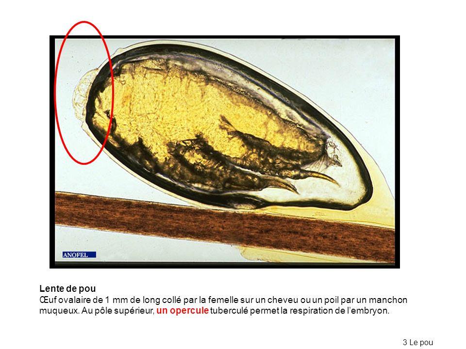 Lente de pou Œuf ovalaire de 1 mm de long collé par la femelle sur un cheveu ou un poil par un manchon muqueux.