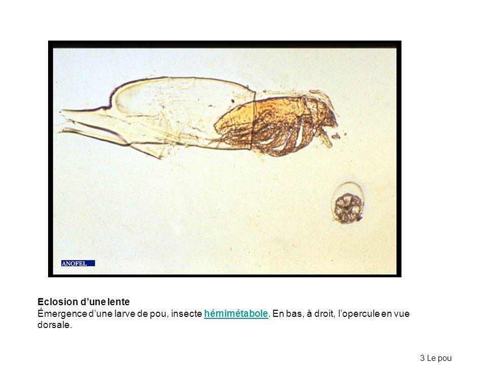Eclosion dune lente Émergence dune larve de pou, insecte hémimétabole. En bas, à droit, lopercule en vue dorsale.hémimétabole 3 Le pou