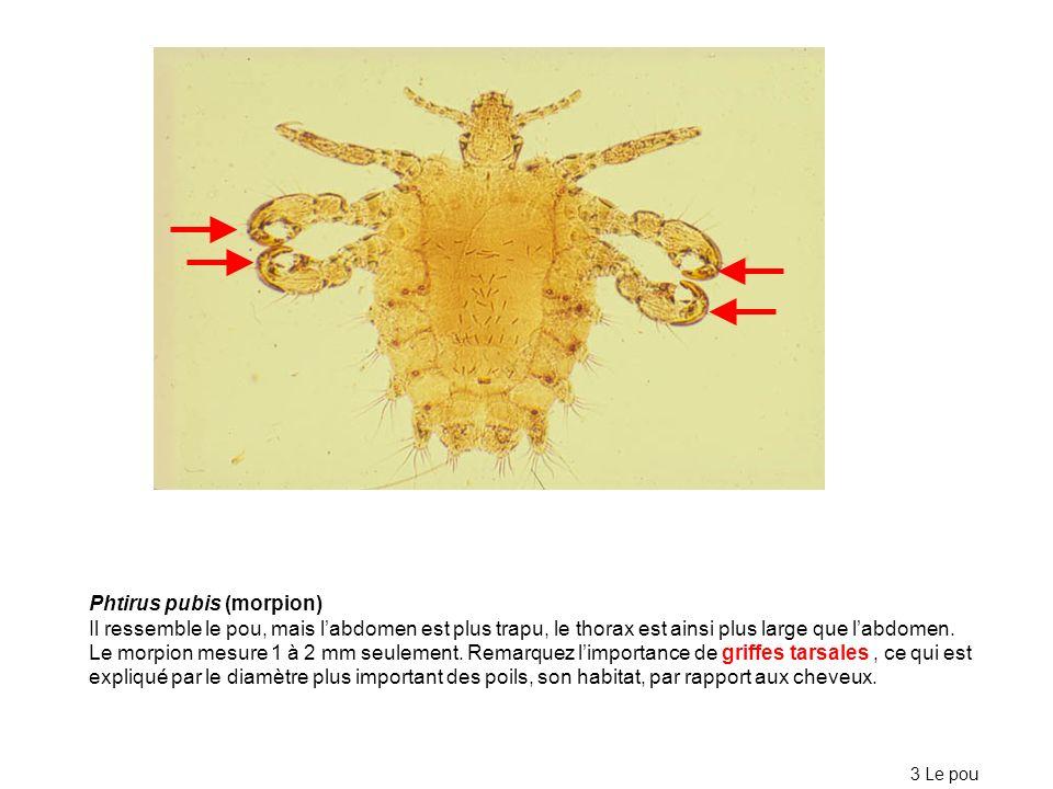 Phtirus pubis (morpion) Il ressemble le pou, mais labdomen est plus trapu, le thorax est ainsi plus large que labdomen. Le morpion mesure 1 à 2 mm seu