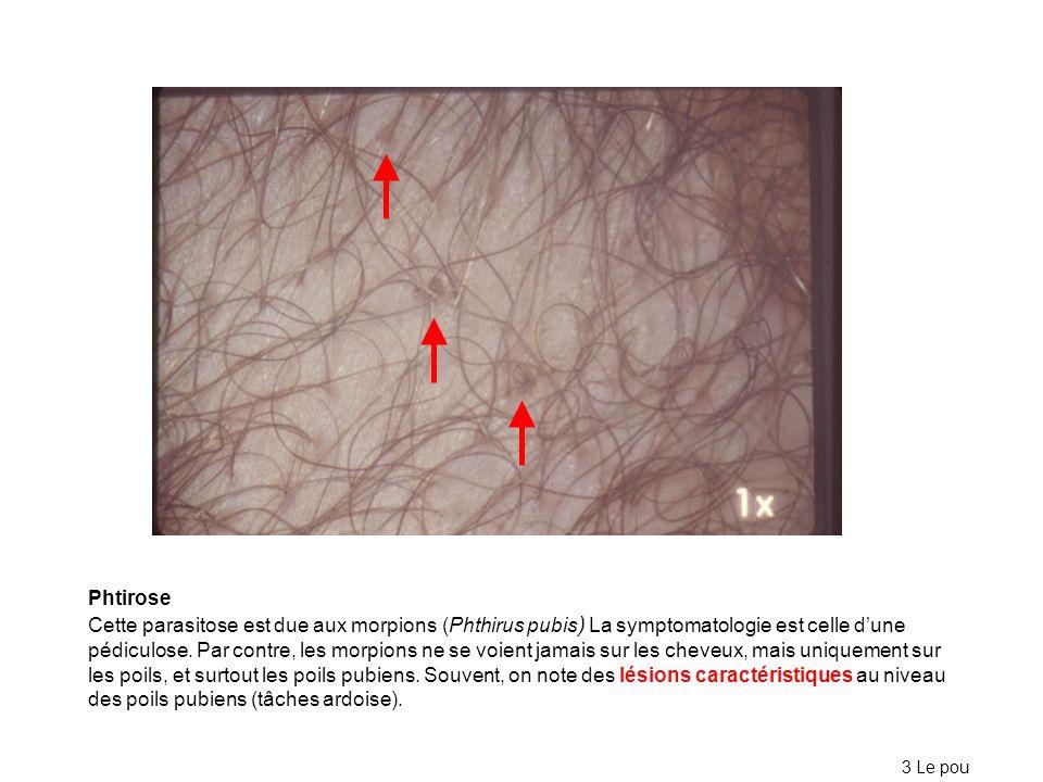 Phtirose Cette parasitose est due aux morpions (Phthirus pubis ) La symptomatologie est celle dune pédiculose. Par contre, les morpions ne se voient j