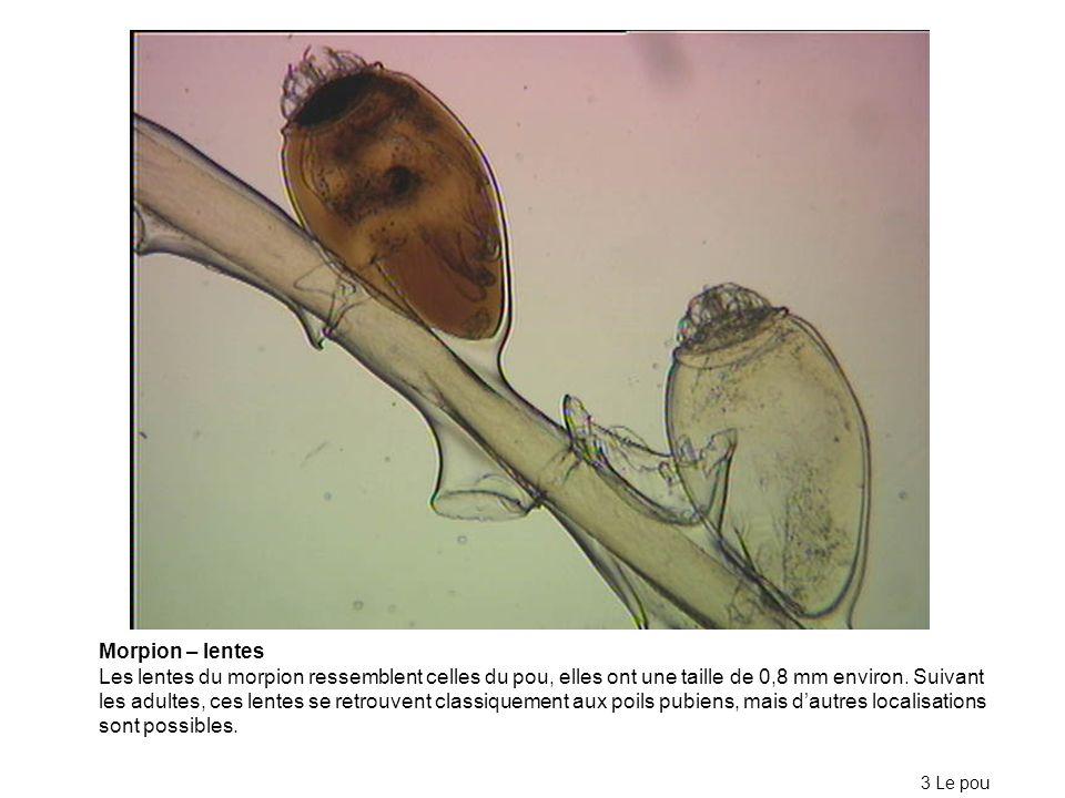Morpion – lentes Les lentes du morpion ressemblent celles du pou, elles ont une taille de 0,8 mm environ. Suivant les adultes, ces lentes se retrouven