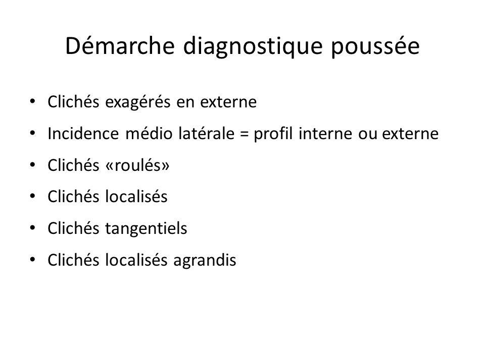 Démarche diagnostique poussée Clichés exagérés en externe Incidence médio latérale = profil interne ou externe Clichés «roulés» Clichés localisés Clic