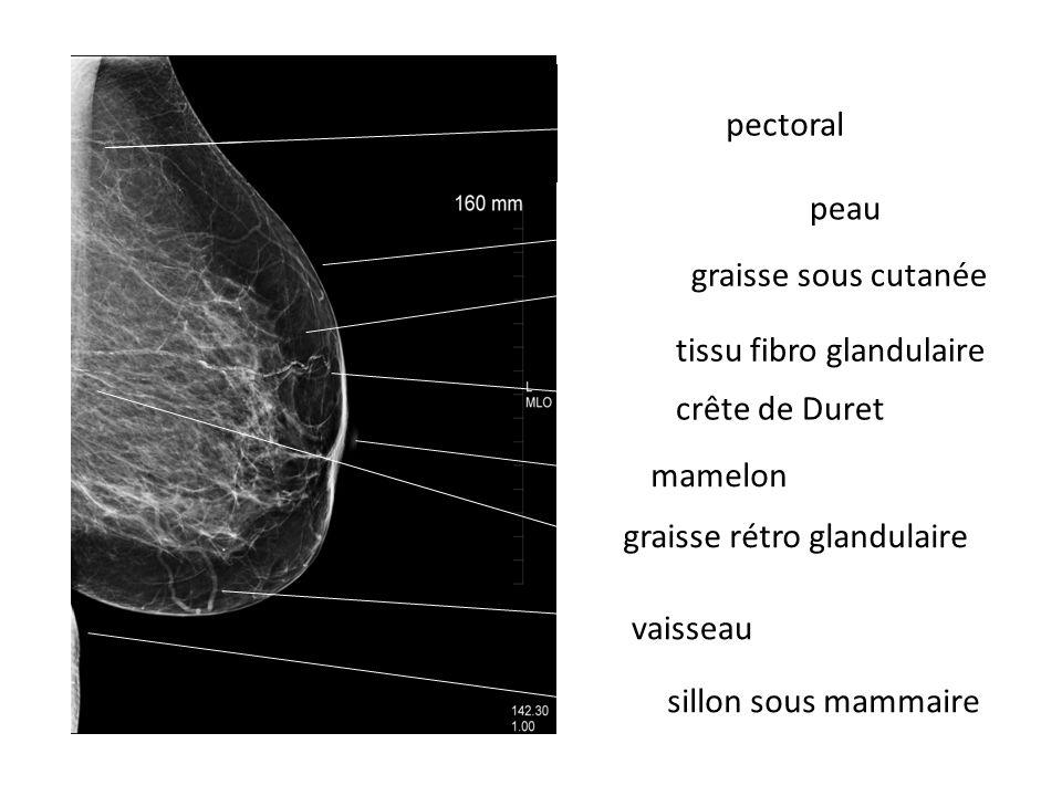 peau graisse sous cutanée tissu fibro glandulaire sillon sous mammaire mamelon graisse rétro glandulaire pectoral crête de Duret vaisseau