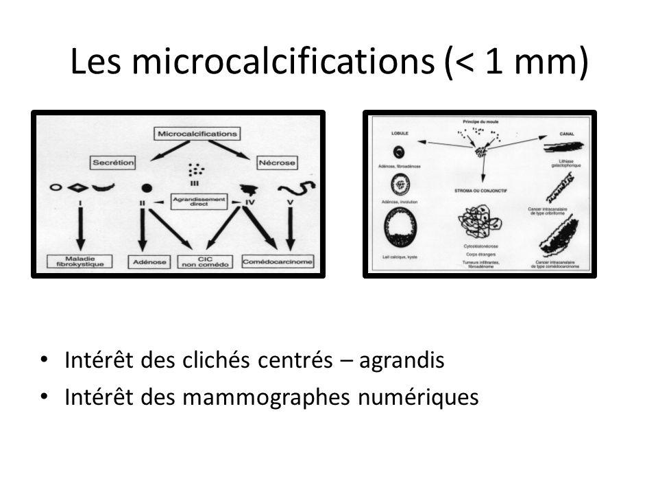 Les microcalcifications (< 1 mm) Intérêt des clichés centrés – agrandis Intérêt des mammographes numériques