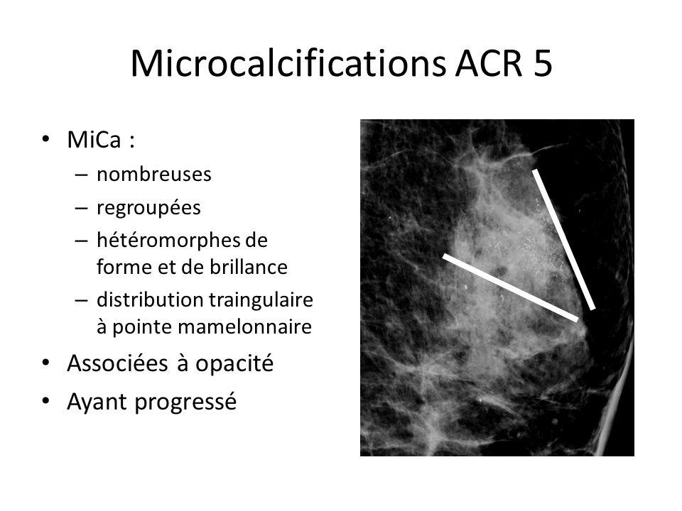 Microcalcifications ACR 5 MiCa : – nombreuses – regroupées – hétéromorphes de forme et de brillance – distribution traingulaire à pointe mamelonnaire