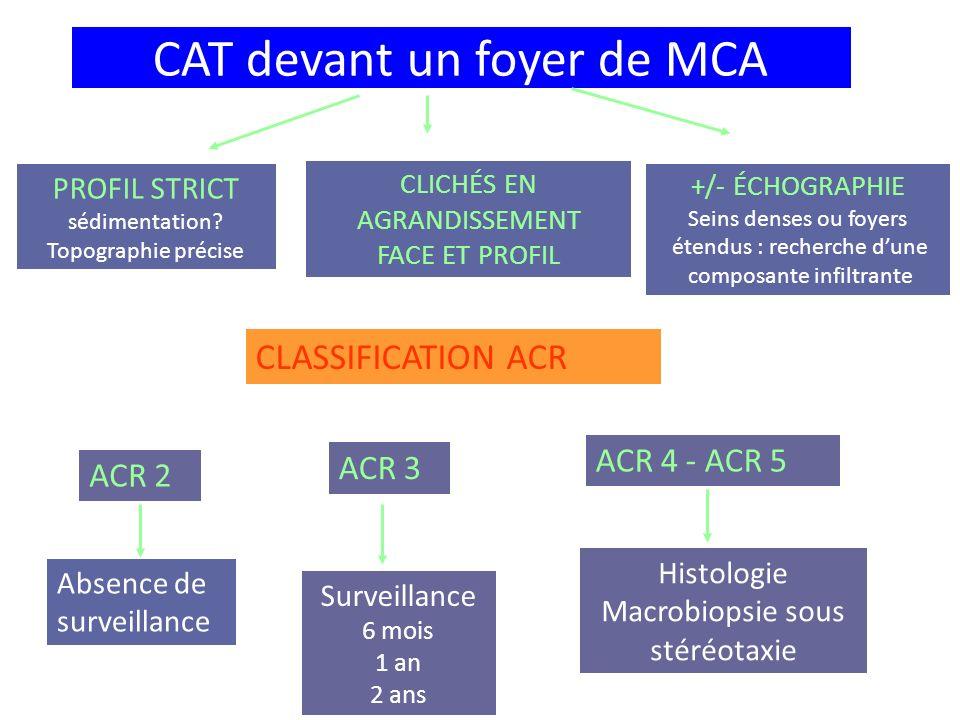 CAT devant un foyer de MCA PROFIL STRICT sédimentation? Topographie précise CLICHÉS EN AGRANDISSEMENT FACE ET PROFIL +/- ÉCHOGRAPHIE Seins denses ou f
