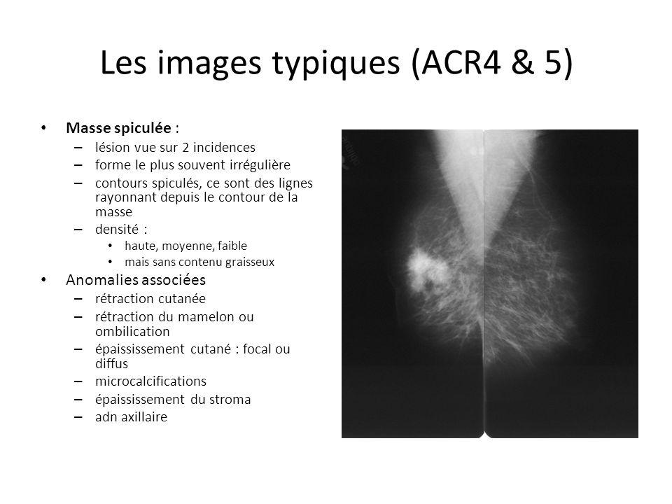 Les images typiques (ACR4 & 5) Masse spiculée : – lésion vue sur 2 incidences – forme le plus souvent irrégulière – contours spiculés, ce sont des lig