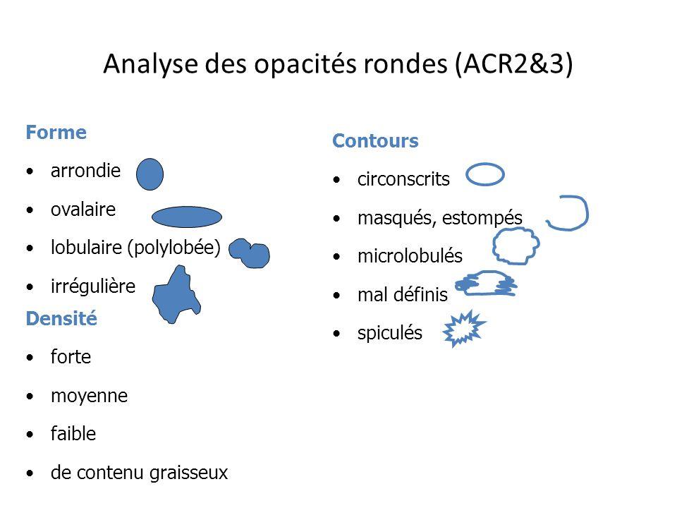 Analyse des opacités rondes (ACR2&3) Forme arrondie ovalaire lobulaire (polylobée) irrégulière Contours circonscrits masqués, estompés microlobulés ma