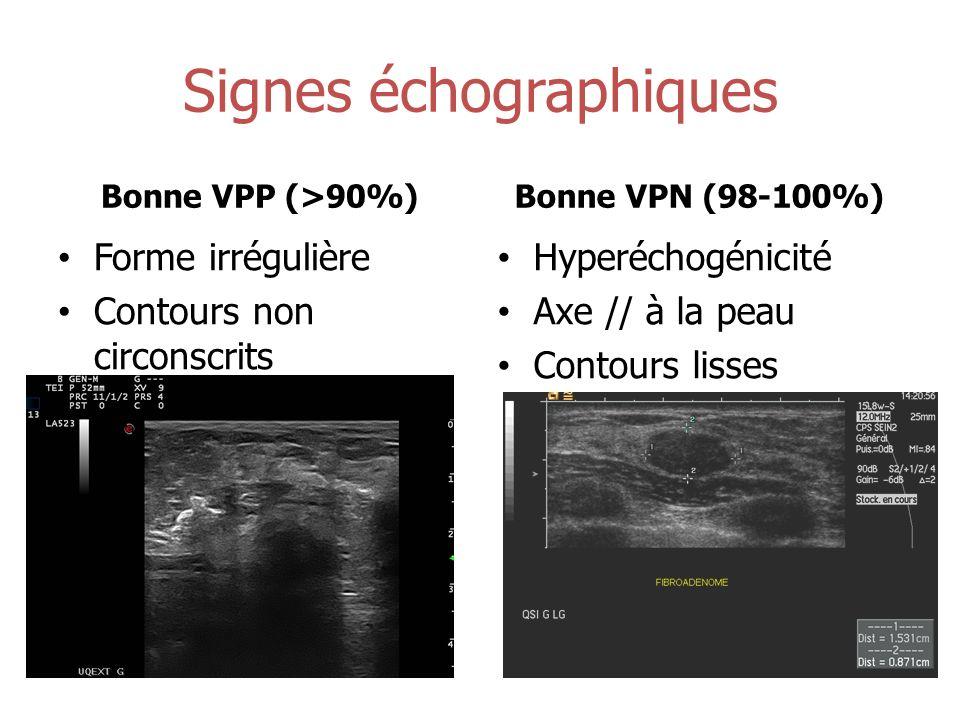 Signes échographiques Bonne VPP (>90%) Forme irrégulière Contours non circonscrits Bonne VPN (98-100%) Hyperéchogénicité Axe // à la peau Contours lis