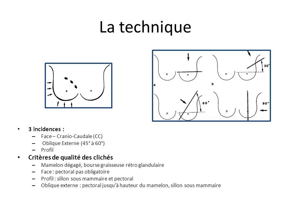 La technique 3 incidences : – Face – Cranio-Caudale (CC) – Oblique Externe (45° à 60°) – Profil Critères de qualité des clichés – Mamelon dégagé, bour