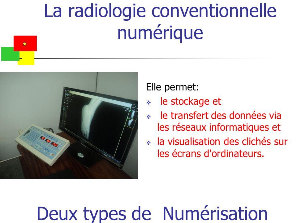 La radiologie conventionnelle numérique Elle permet: le stockage et le transfert des données via les réseaux informatiques et la visualisation des cli