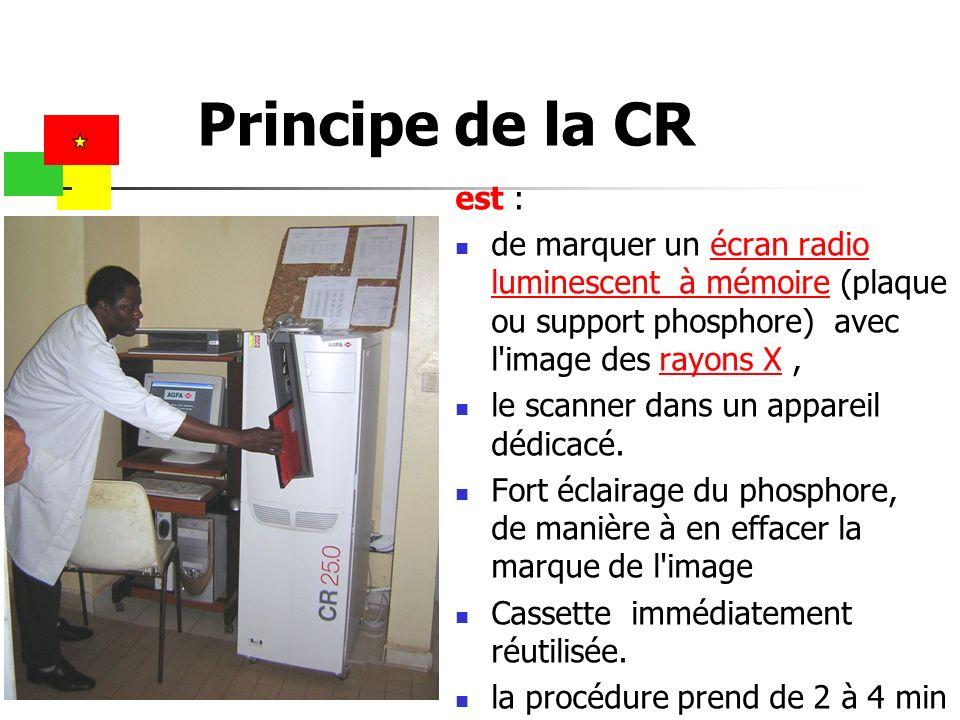 est : de marquer un écran radio luminescent à mémoire (plaque ou support phosphore) avec l'image des rayons X,écran radio luminescent à mémoirerayons