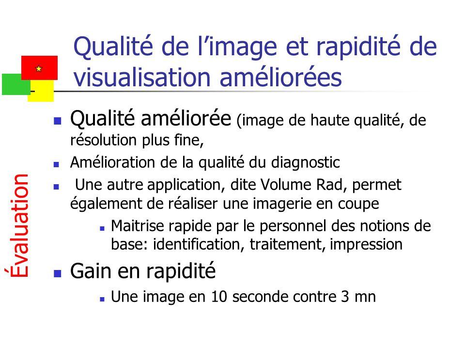 Qualité de limage et rapidité de visualisation améliorées Qualité améliorée (image de haute qualité, de résolution plus fine, Amélioration de la quali