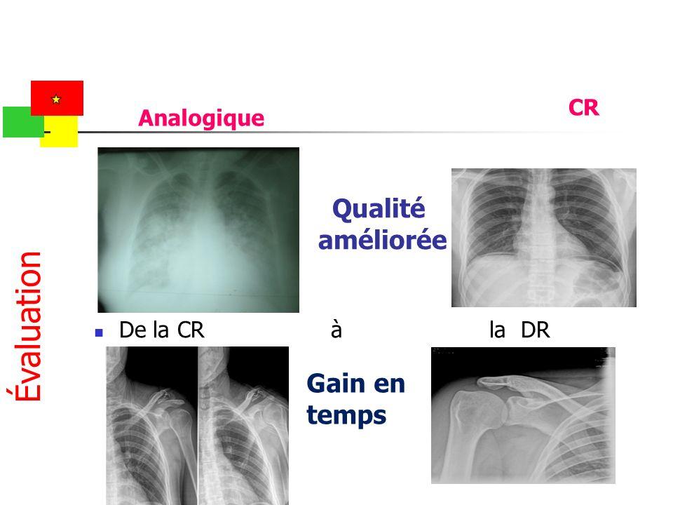 Qualité améliorée De la CR à la DR Évaluation Analogique CR Gain en temps