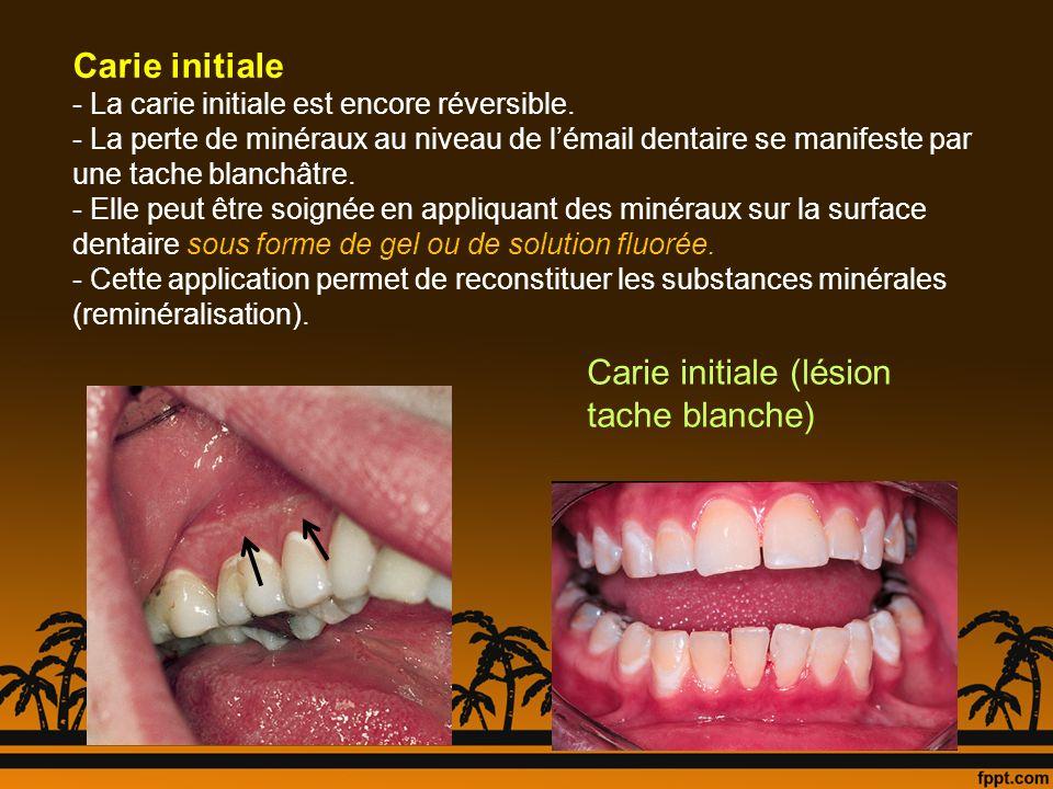 Carie initiale (lésion tache blanche) Carie initiale - La carie initiale est encore réversible. - La perte de minéraux au niveau de lémail dentaire se