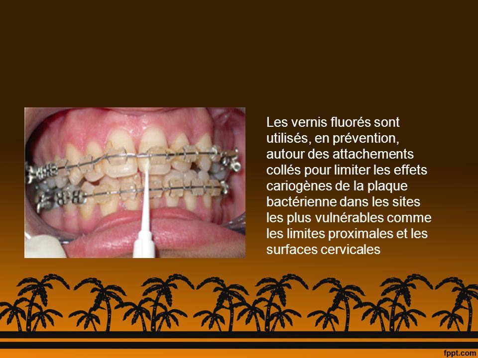 Les vernis fluorés sont utilisés, en prévention, autour des attachements collés pour limiter les effets cariogènes de la plaque bactérienne dans les s