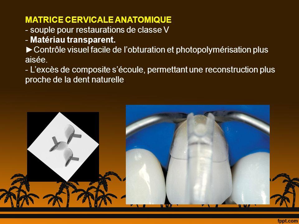 MATRICE CERVICALE ANATOMIQUE - souple pour restaurations de classe V - Matériau transparent. Contrôle visuel facile de lobturation et photopolymérisat