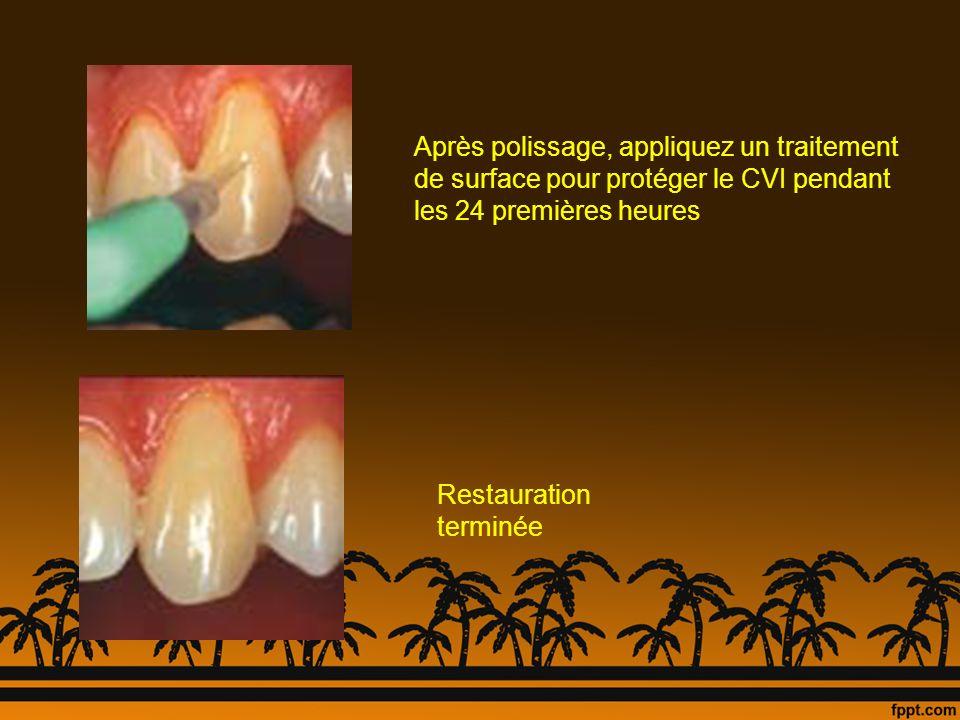 Après polissage, appliquez un traitement de surface pour protéger le CVI pendant les 24 premières heures Restauration terminée