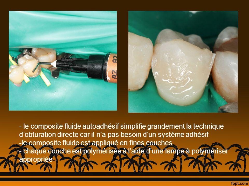 - le composite fluide autoadhésif simplifie grandement la technique dobturation directe car il na pas besoin dun système adhésif -le composite fluide