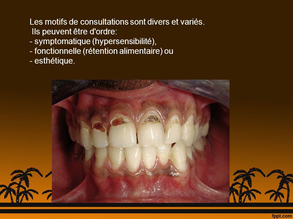 Les caries de classe V sont favorisées par certains facteurs : - une mauvaise hygiène buccodentaire - une alimentation déséquilibrée - une dénudation radiculaire - une hyposialie - des crochets de prothèse amovible mal conçus, provoquant une usure de l émail et des zones de rétention de plaque dentaire - un traitement orthodontique intempestif - des dysplasies amélodentinaires - l alcoolisme et la toxicomanie : les polycaries du collet sont le signe pathognomonique d une toxicomanie de plusieurs années Caries cervicales généralisées caractéristiques du patient tabagique.
