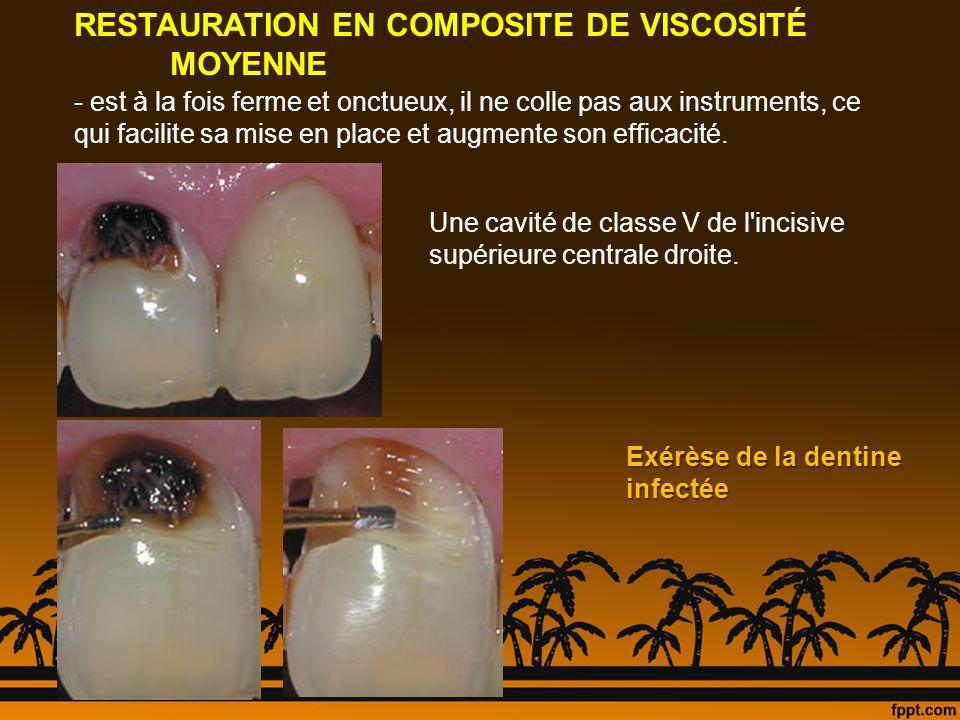 Une cavité de classe V de l'incisive supérieure centrale droite. Exérèse de la dentine infectée RESTAURATION EN COMPOSITE DE VISCOSITÉ MOYENNE - est à