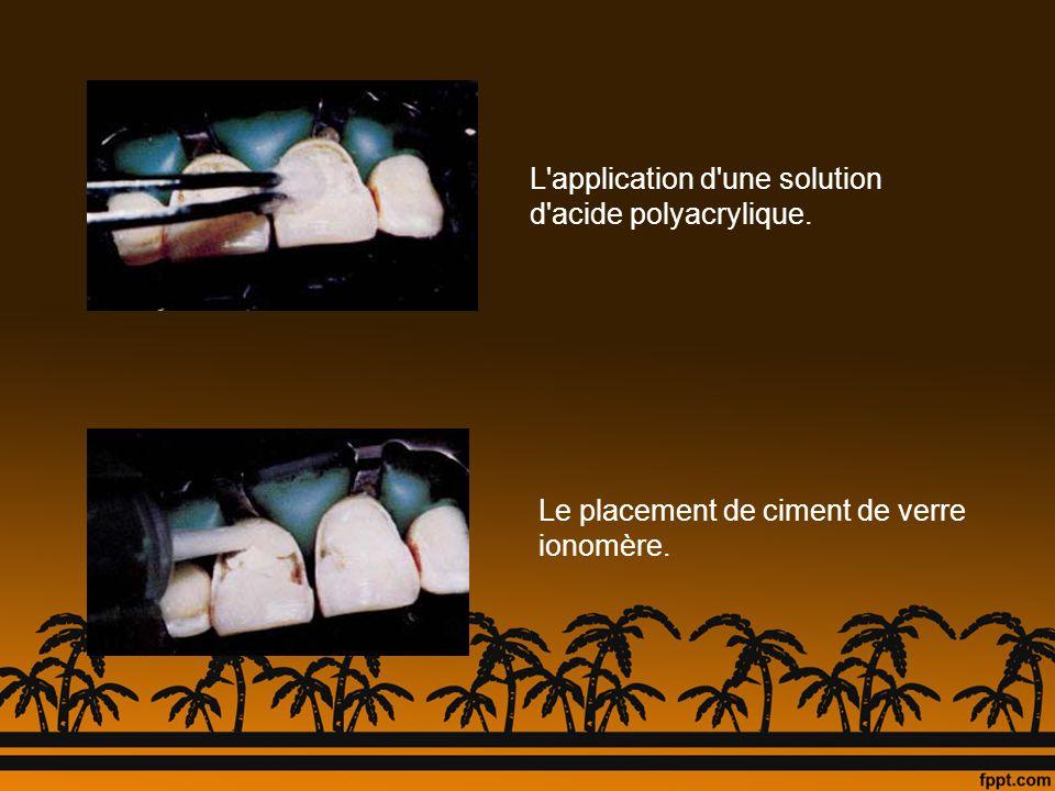 L'application d'une solution d'acide polyacrylique. Le placement de ciment de verre ionomère.