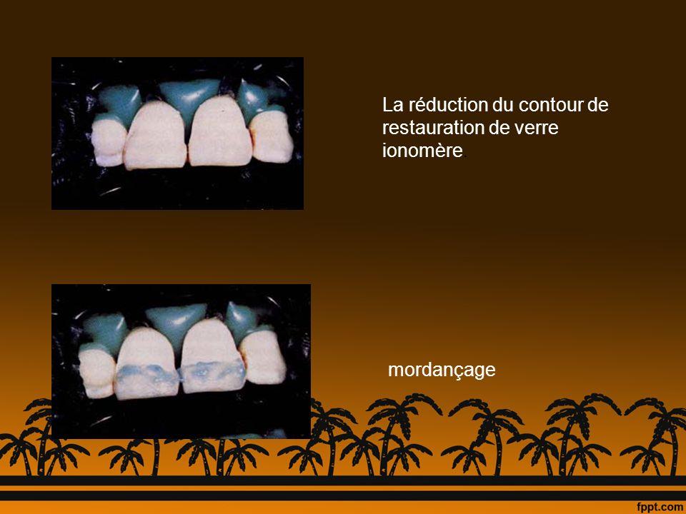 La réduction du contour de restauration de verre ionomère. mordançage