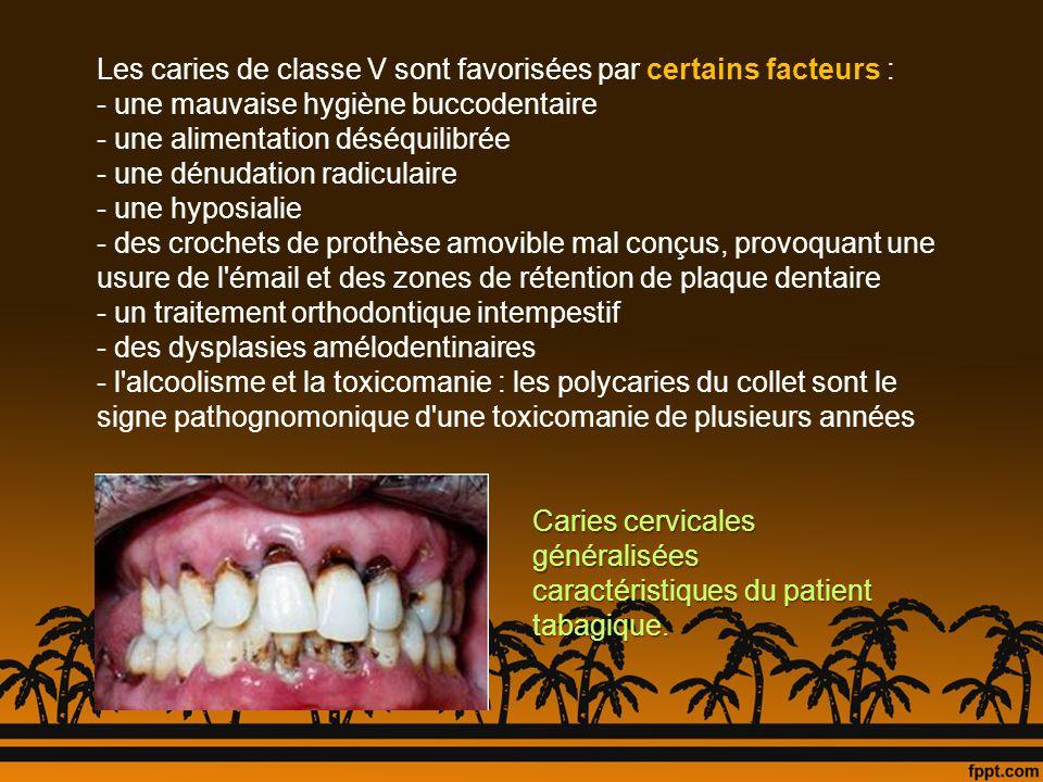 Apparition de taches de déminéralisation au cours d un traitement orthodontique Conséquences d une hygiène bucco-dentaire insuffisante