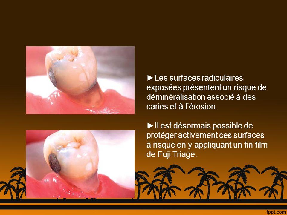 Les surfaces radiculaires exposées présentent un risque de déminéralisation associé à des caries et à lérosion. Il est désormais possible de protéger