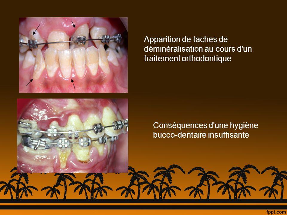 Apparition de taches de déminéralisation au cours d'un traitement orthodontique Conséquences d'une hygiène bucco-dentaire insuffisante