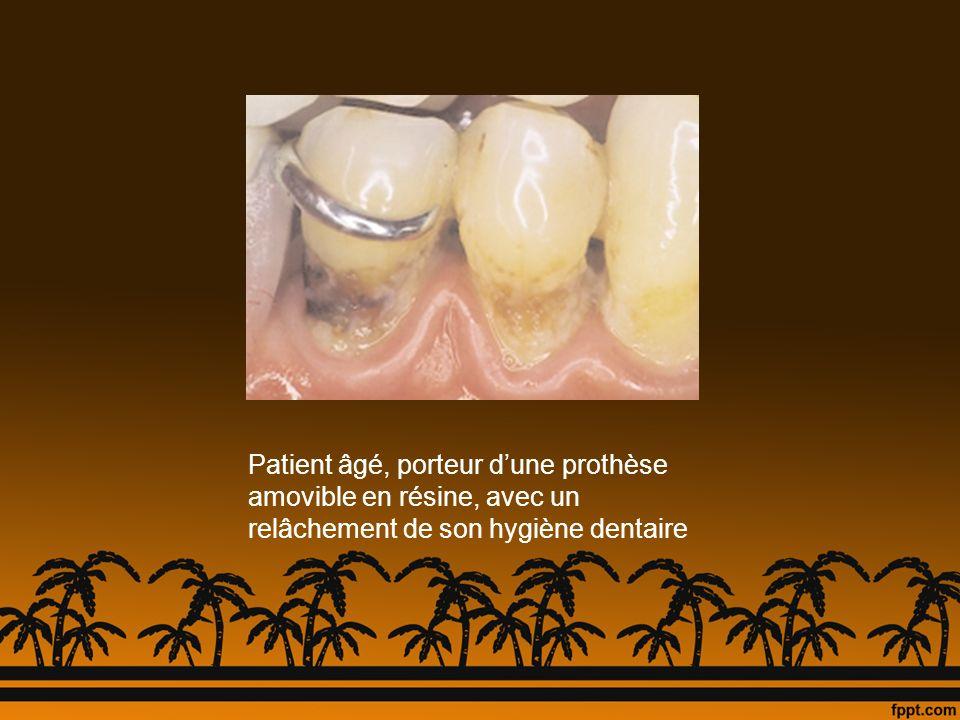 Patient âgé, porteur dune prothèse amovible en résine, avec un relâchement de son hygiène dentaire