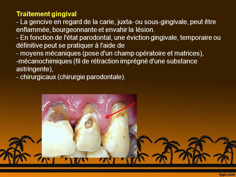Traitement gingival - La gencive en regard de la carie, juxta- ou sous-gingivale, peut être enflammée, bourgeonnante et envahir la lésion. - En foncti